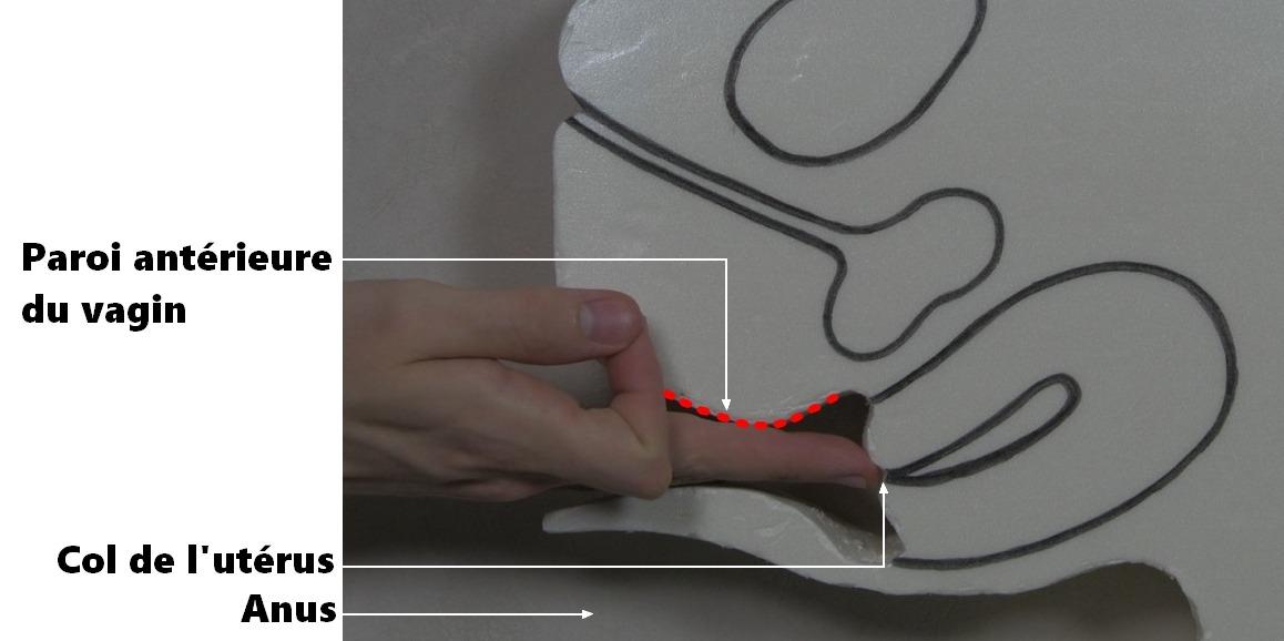 Ne touchez pas le col de l'utérus