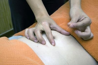 L'acupuncture au service du plaisir féminin