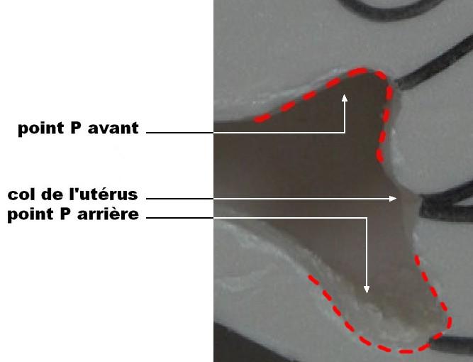 Les back et front deep spots en image